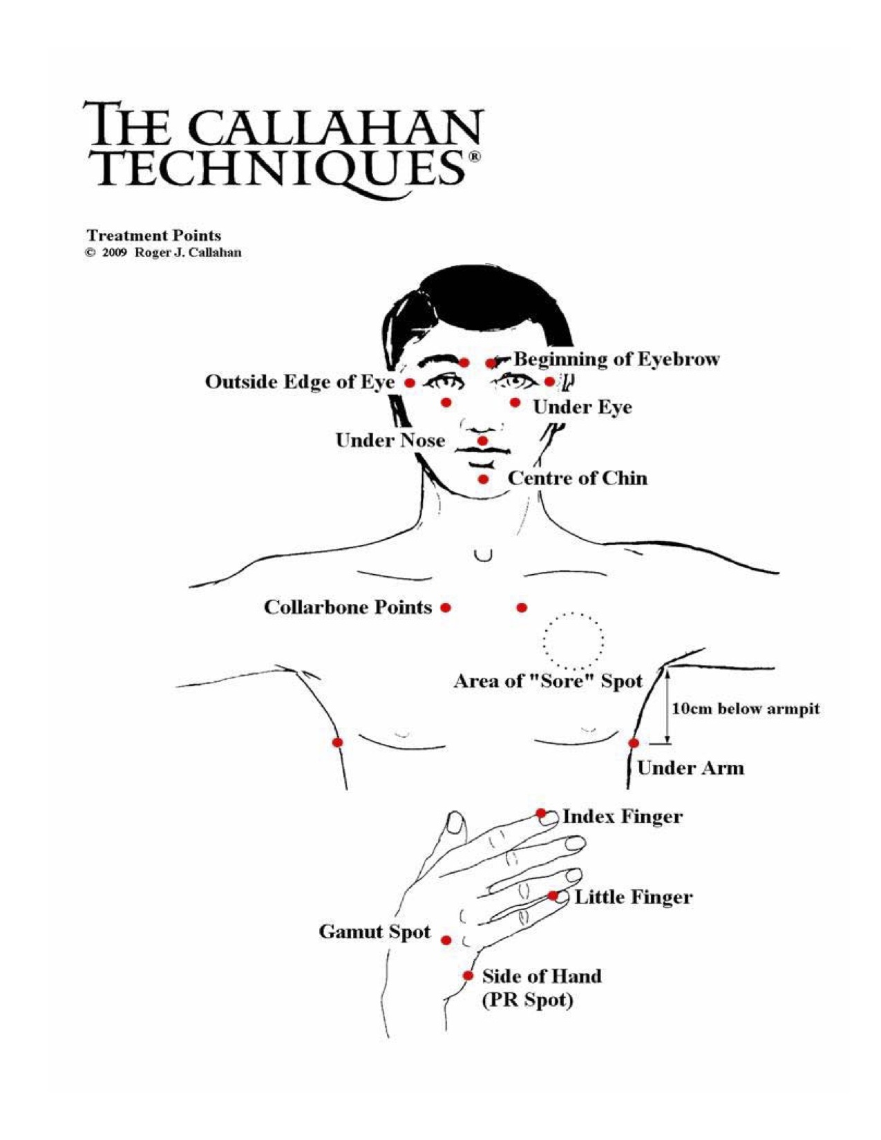 Callahan Techniques Thought Field Therapy Tapping Points